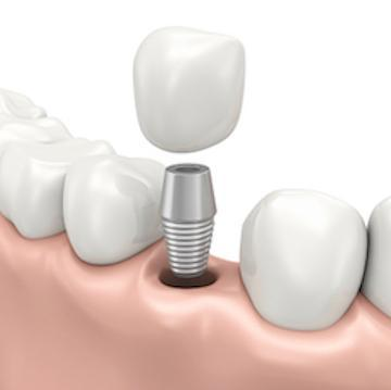 implant abutment in humble tx | humble dentistry