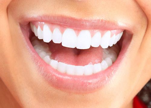 Woman with clearcorrect aligners | Humble TX