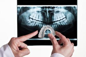 a doctor points to a mouth guard in front of a dental x-ray | bruxism treatment humble tx