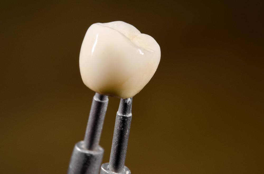 dental crowns humble tx | humble dentistry