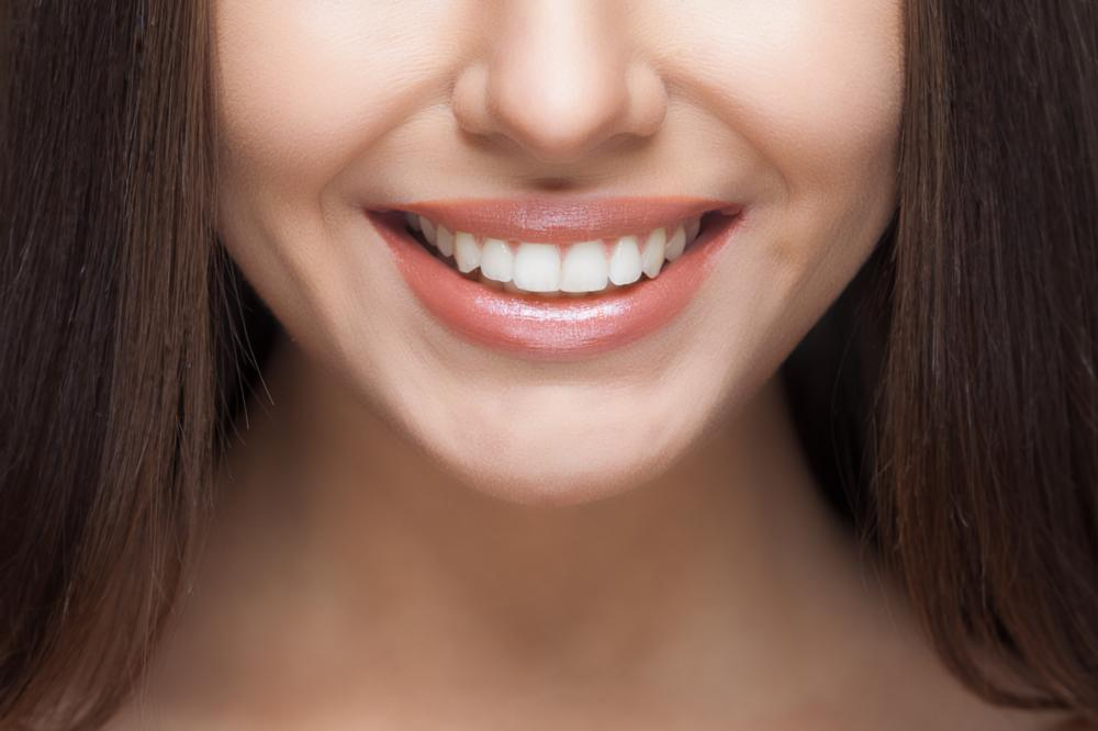 a woman smiles | cosmetic dentist humble tx