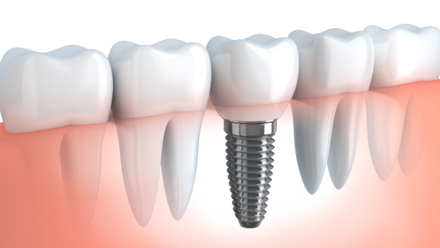 a diagram of a dental implant | dental implants humble tx
