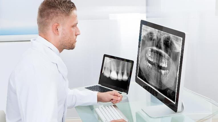 a dentist inspects x-rays | root canal dentist humble tx