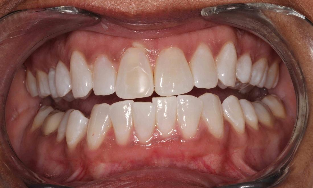 teeth that have been whitened | humble tx professional teeth whitening