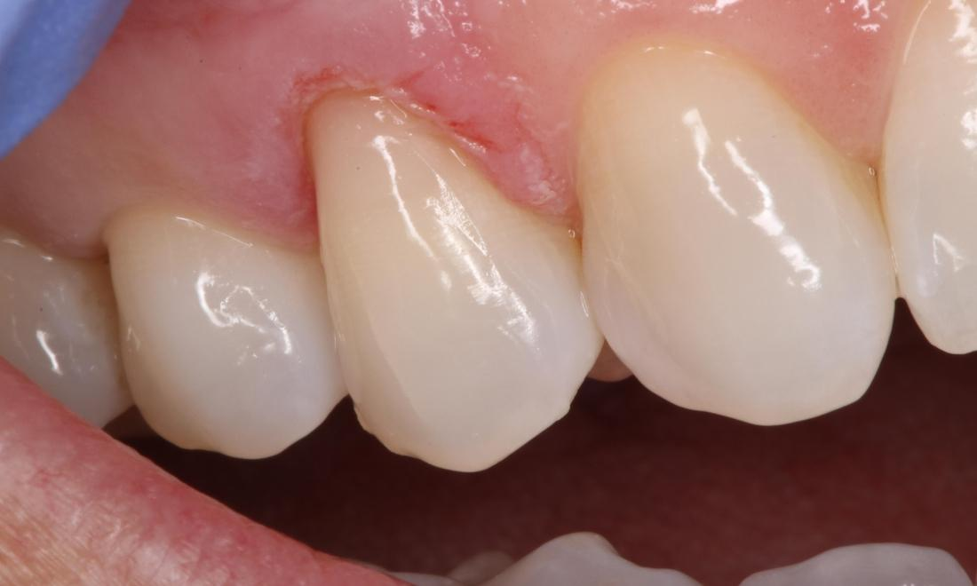 a tooth who has had an old filling removed and replaced | humble tx dental fillings