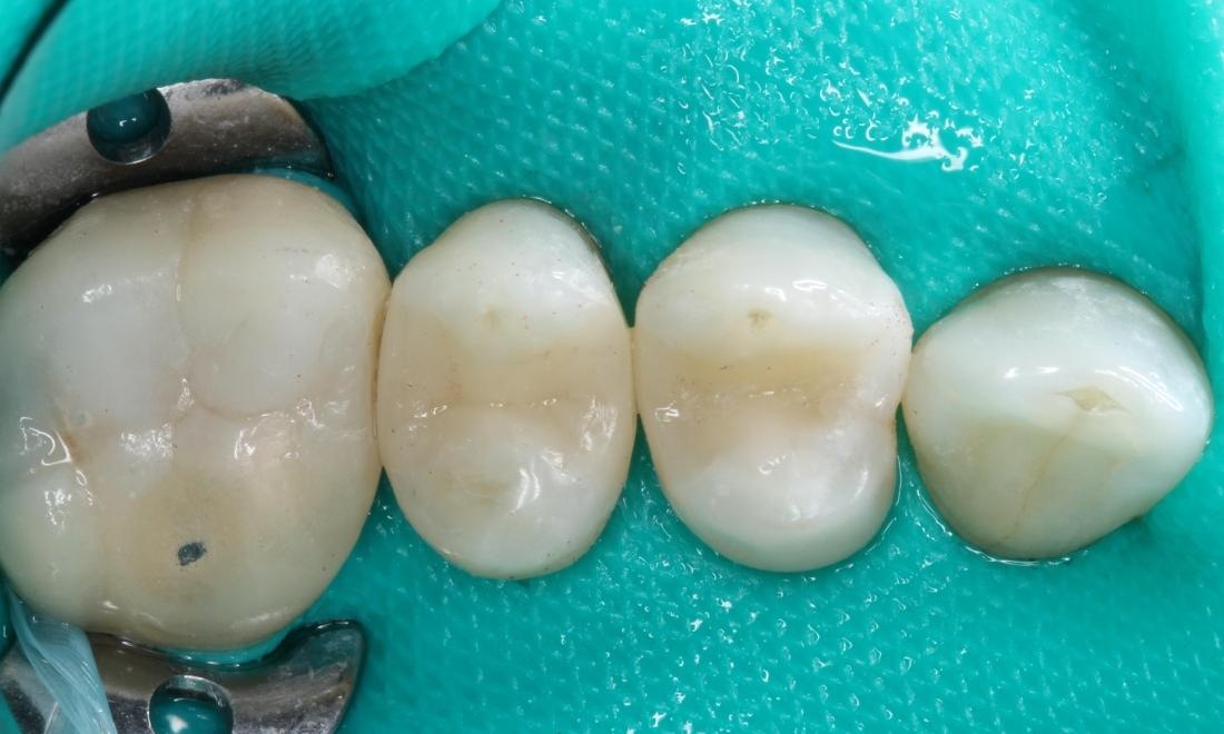 molars after having gaps between them filled | humble dentist