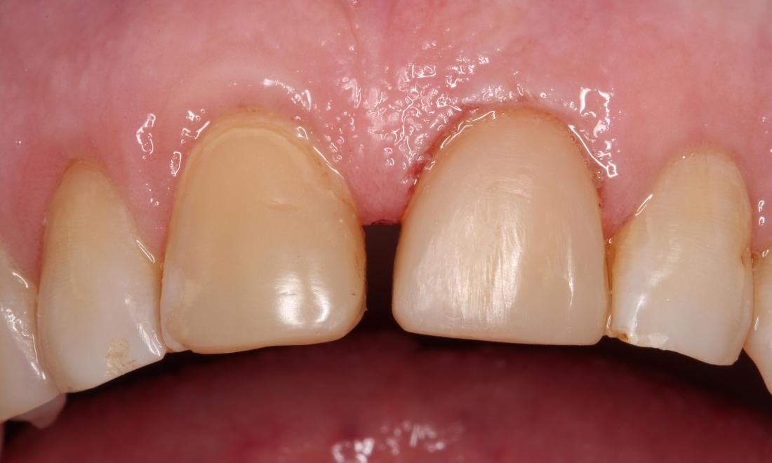 a front tooth with a veneer on it, repairing the chip | humble tx dental veneers