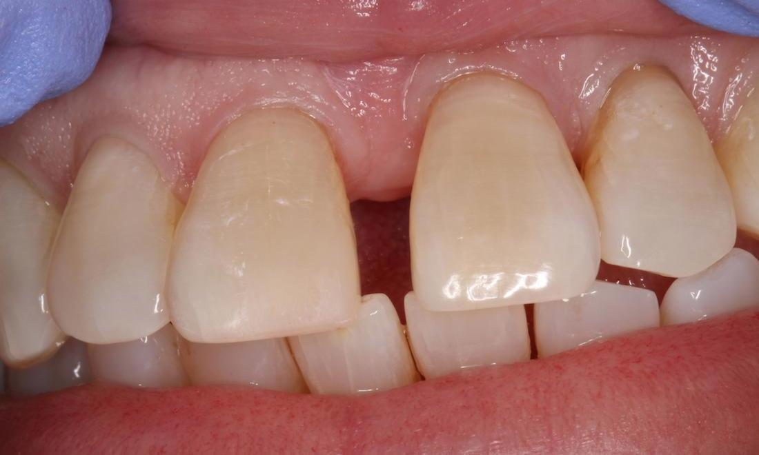 Tooth colored filling, repaired tooth, repaired tooth colored filling | humble tx dental fillings