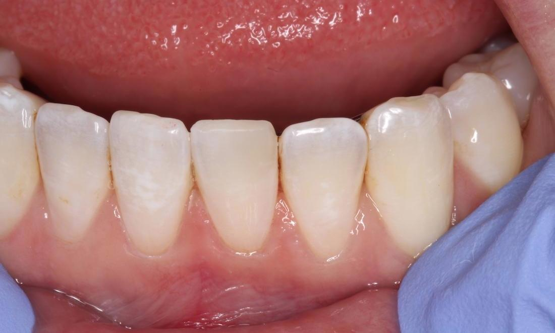 a tooth with a chip repaired | humble tx cosmetic dentist