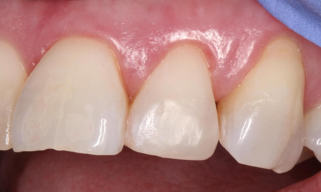 a chipped tooth repaired with composite resin | humble tx cosmetic dentist