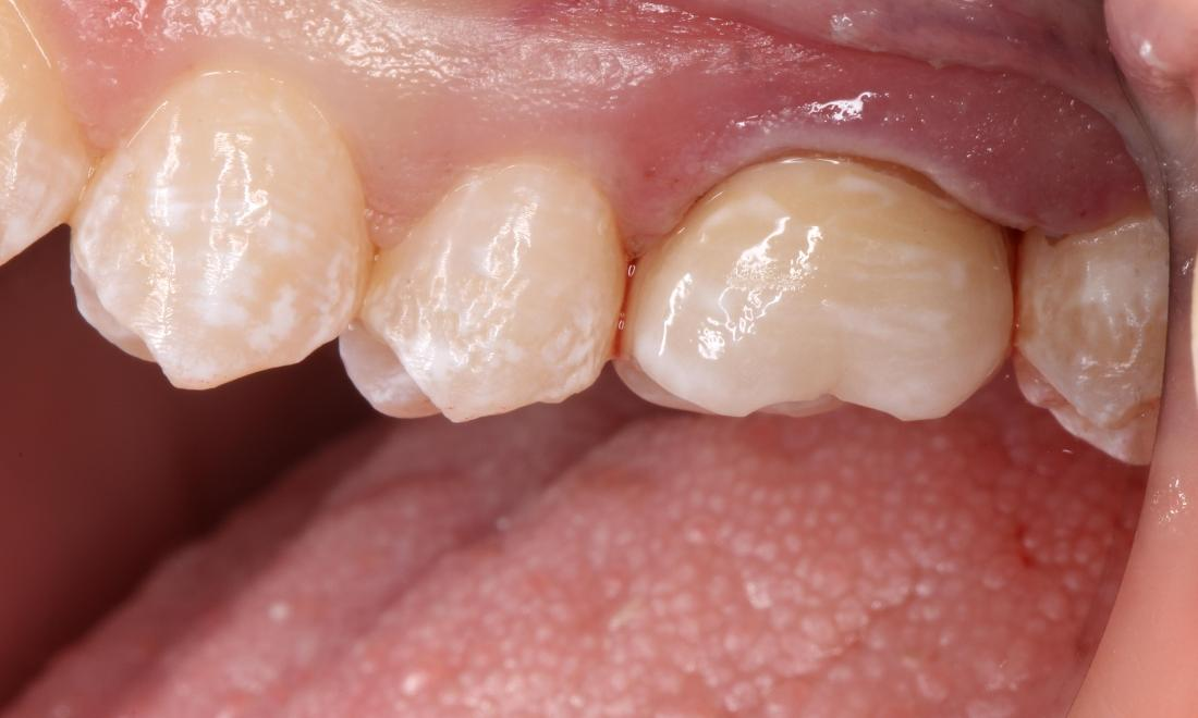 a smile with a new, natural looking crown | humble dental crowns