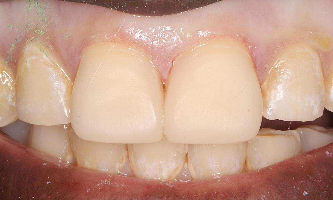 after with direct composite veneer
