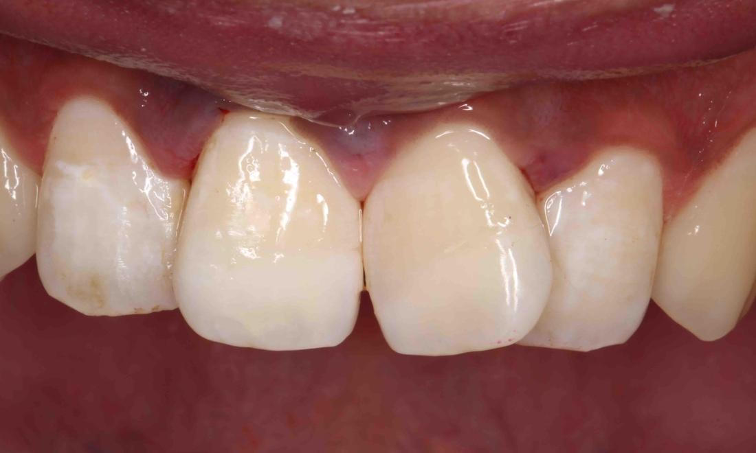 broken tooth replaced with veneers | humble tx dentist
