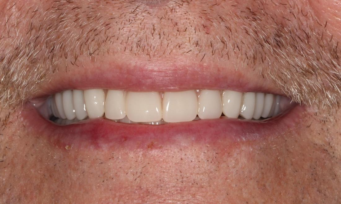 a smile with a full set of teeth, created by implant retained dentures | humble tx dental implants