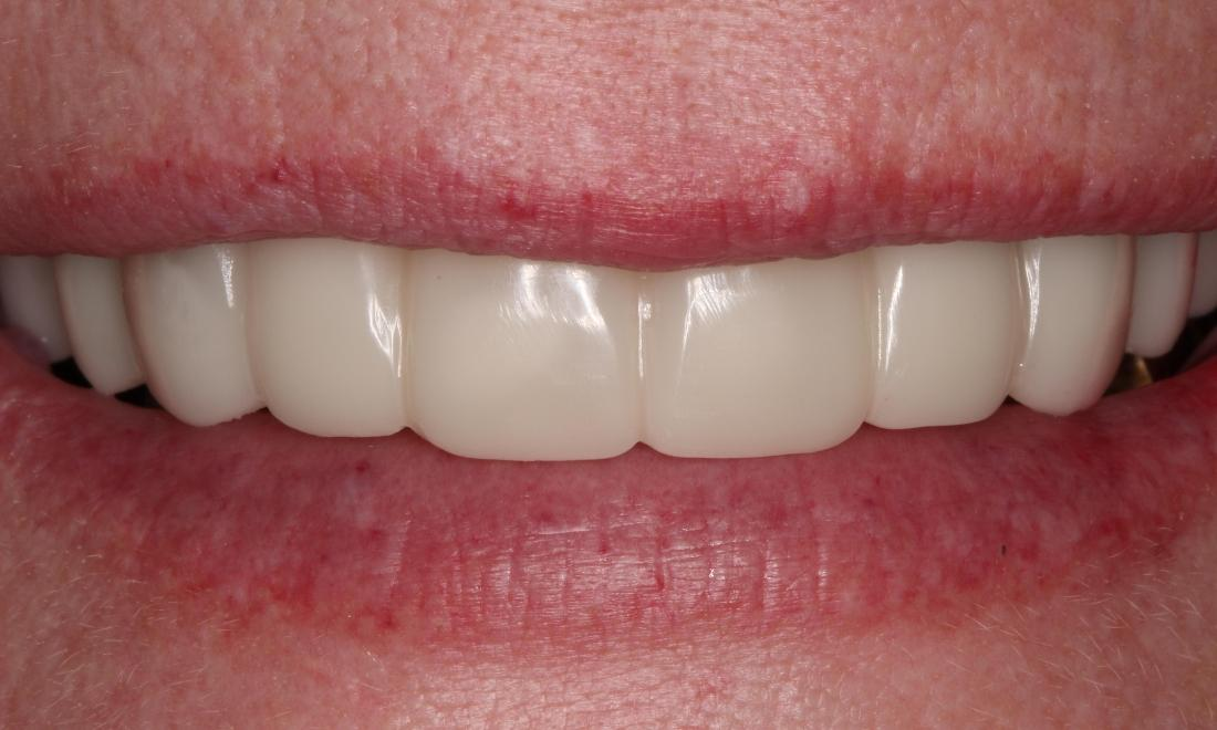a smile after snap-on-smile, featuring uniform teeth | dentist