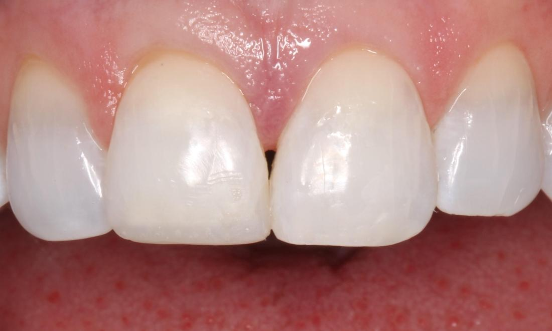 a smile that has had stains and chips fixed with cosmetic bonding | cosmetic dentist humble tx