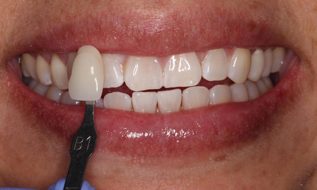 a smile, brighter after teeth whitening | teeth whitening in humble tx
