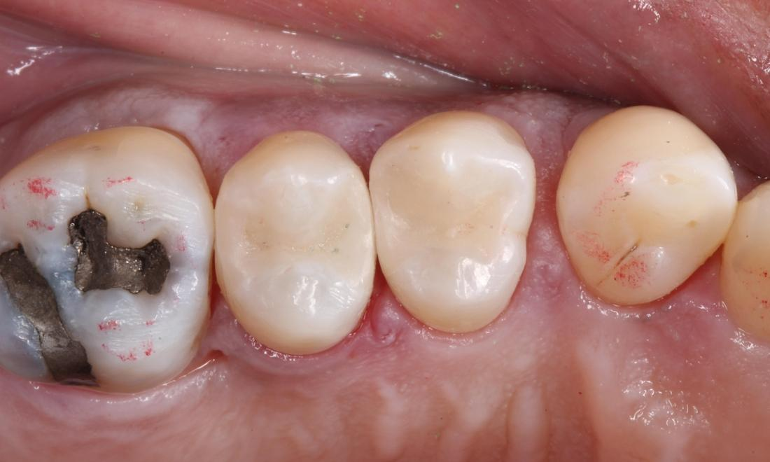 After treatment with tooth colored filling material