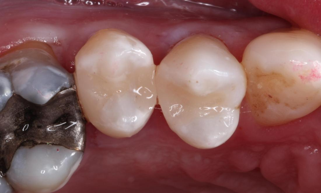 After treatment with direct composite filling material