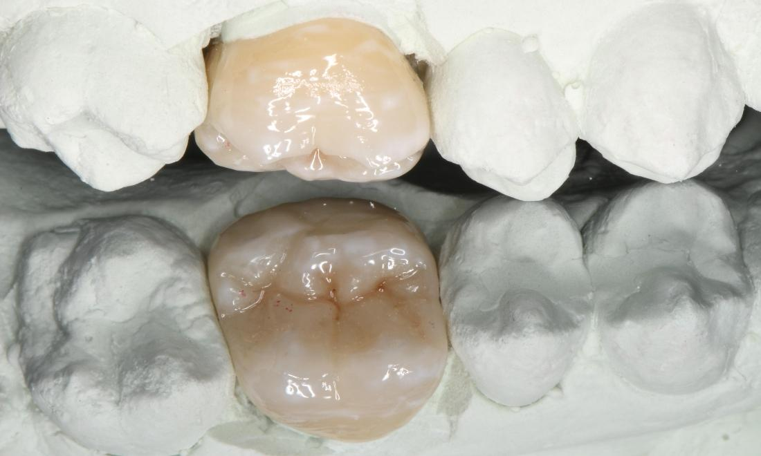 a crown, crafted into a mold of a person's mouth | dental crowns in humble tx