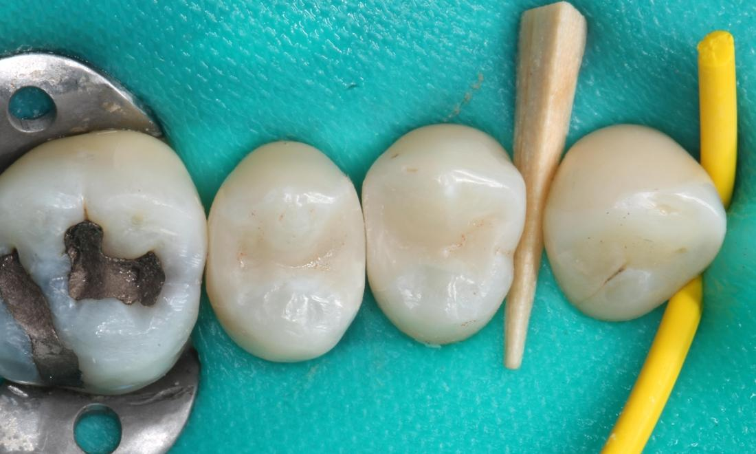 Tooth colored fillings in place after initial adjustments