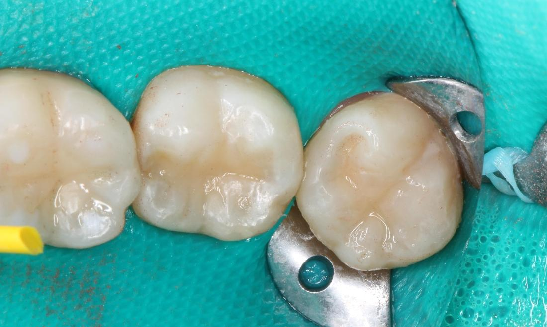white composite filling, tooth colored filling, polished fillings | dentist in humble