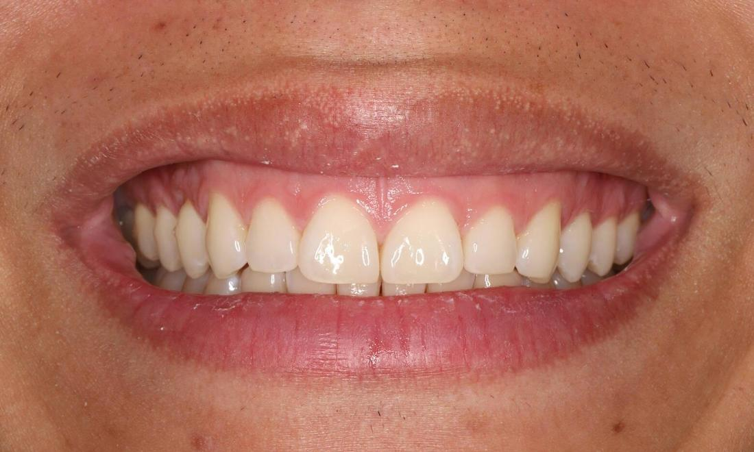 After treatment with all ceramic tooth colored onlay