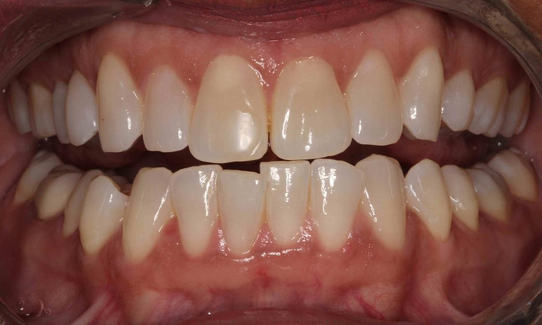 teeth that have been stained due to use over time | teeth whitening humble tx