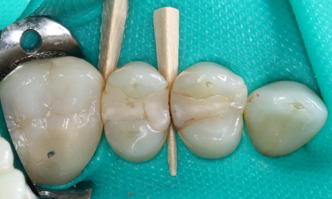 molars before composite fillings | dentist in humble tx
