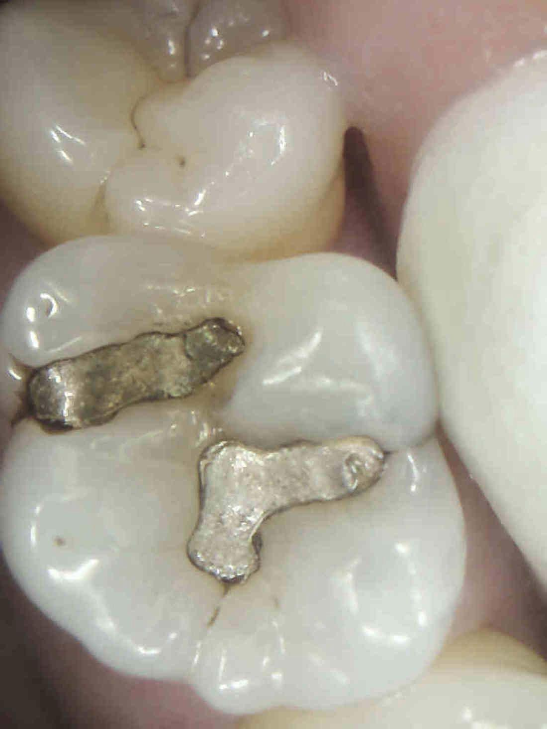 Silver filling, cracked filling, open margins on existing filling | tooth colored fillings humble