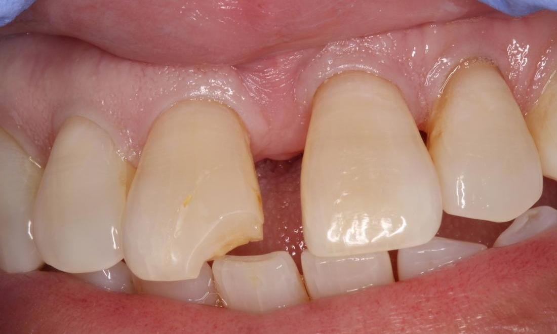 Chipped tooth, chipped filling, broken tooth colored filling | tooth colored fillings humble tx