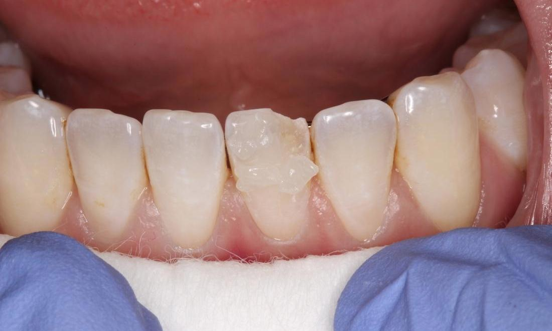 a chipped bottom tooth | cosmetic dentist humble
