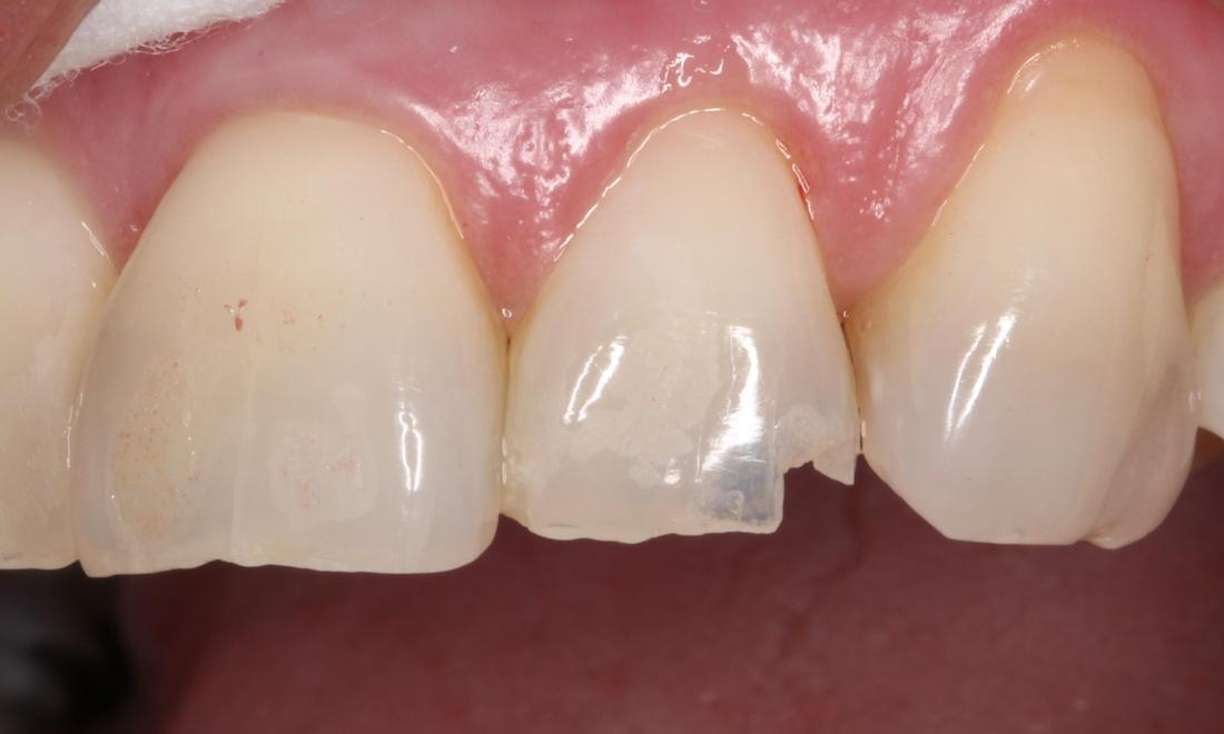 a chipped tooth | cosmetic dentist humble