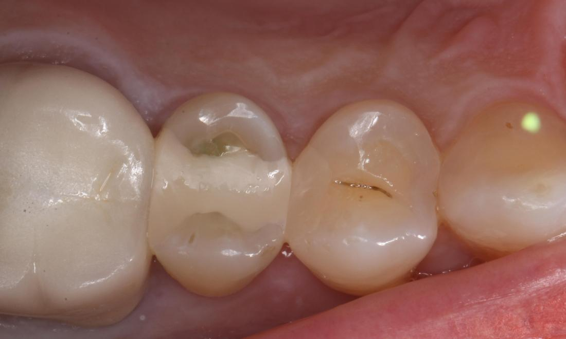 Tooth built up with tooth colored composite resin