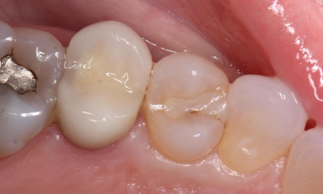 decay around tooth colored filling