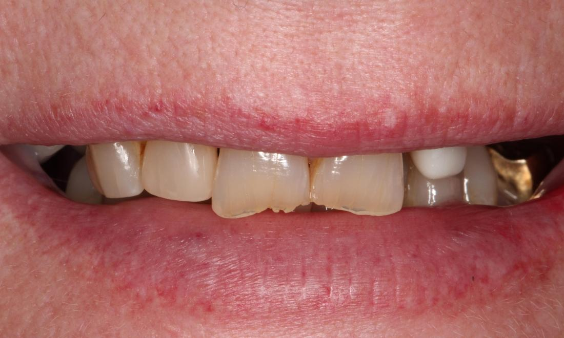 a smile before snap on smile, with chips, discolorations, misalignment, and a golden crown | snap-on-smile dentist humble