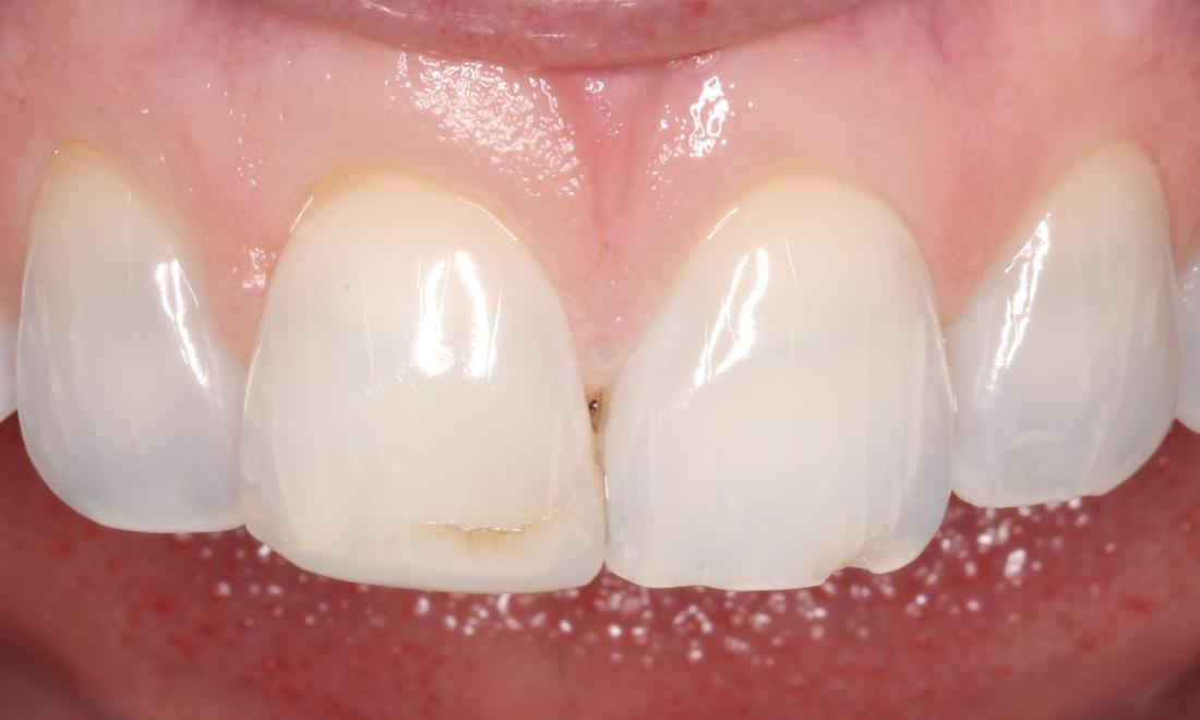 a smile with a stain on one front tooth | cosmetic dentist humble tx