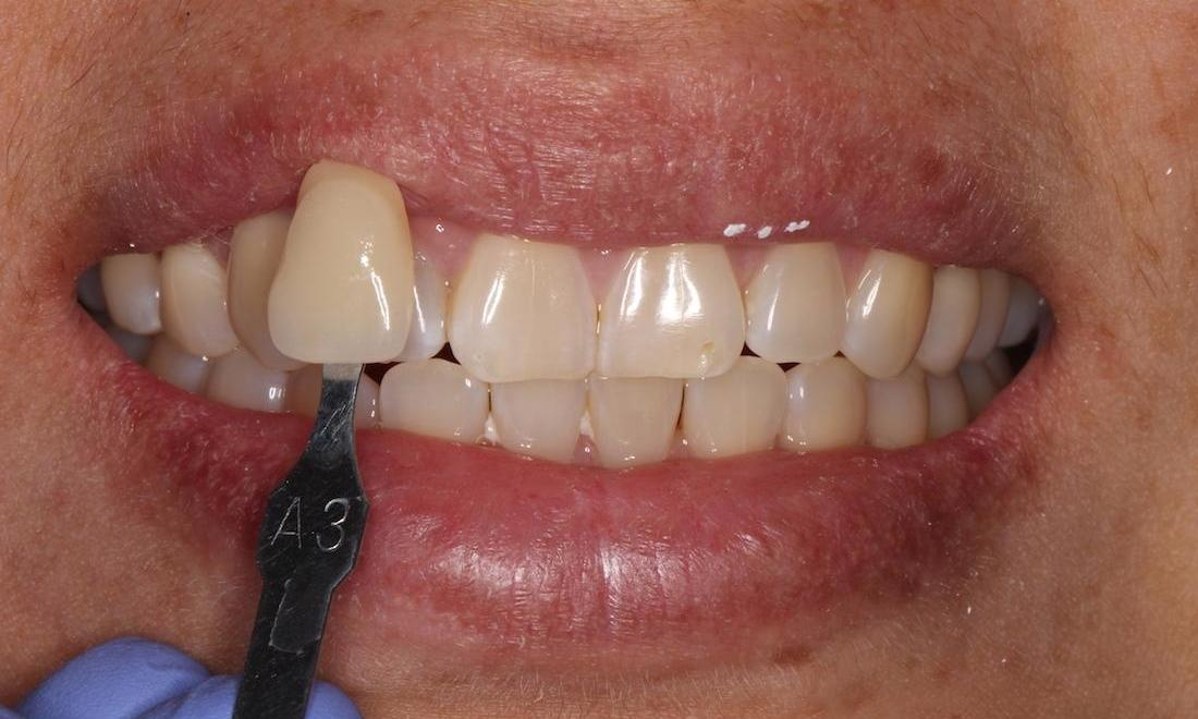 a smile before teeth whitening | humble tx teeth whitening