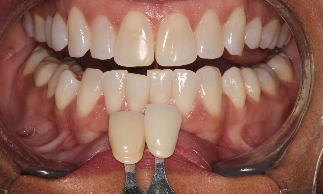stained teeth due to wear and tear | humble tx zoom whitening