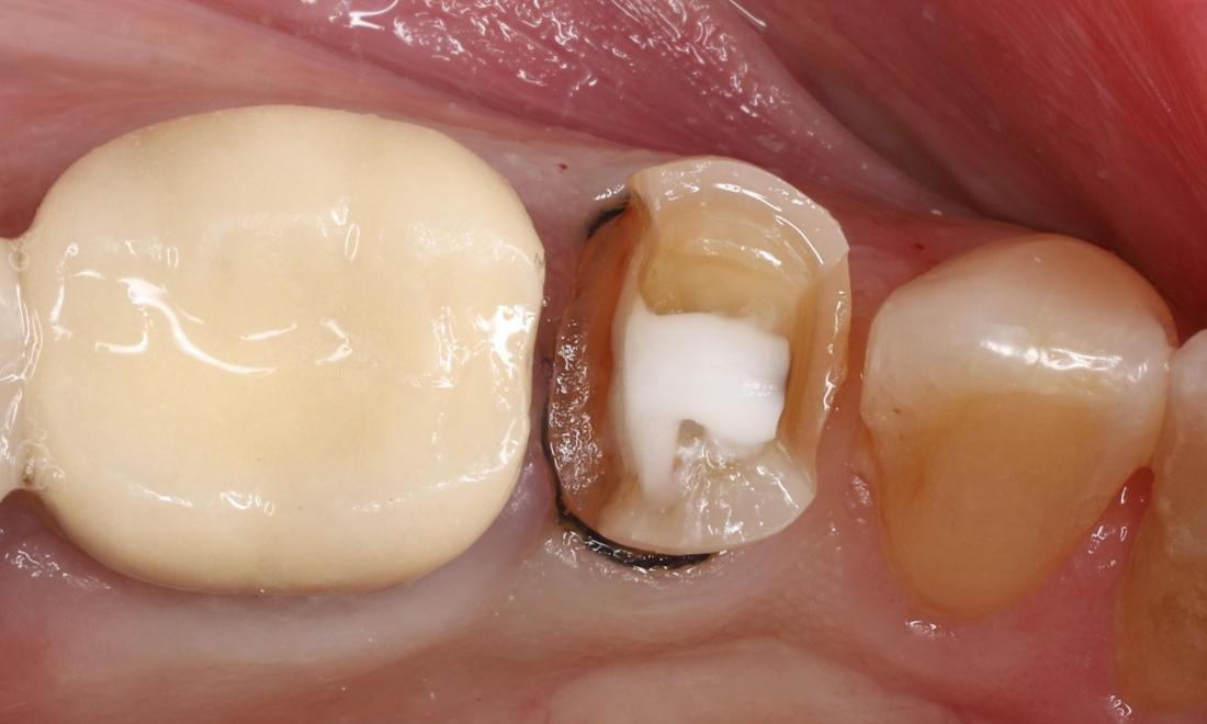 During treatment showing white buildup material and tooth prepared for onlay