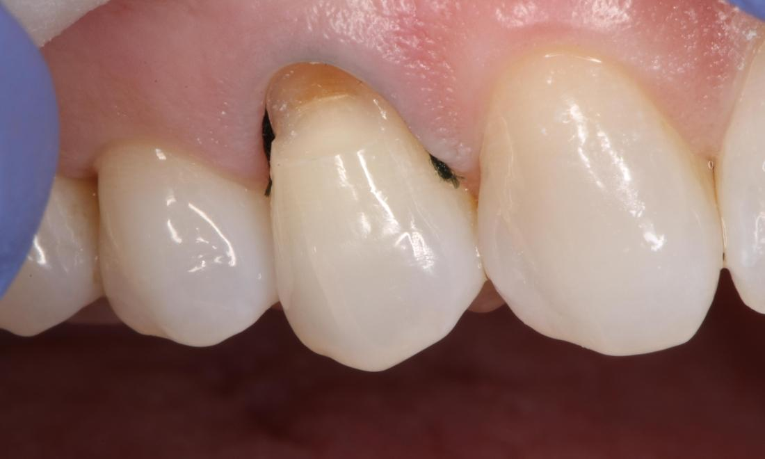a tooth that has had an old filling removed, and is waiting to get it replaced | filling dentist in humble tx