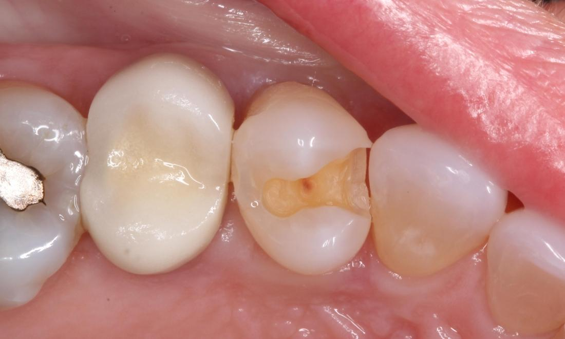 old tooth colored filling and decay removed