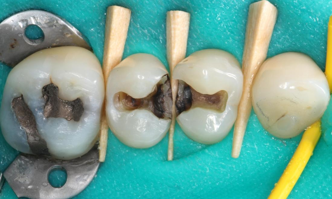 Silver fillings removed showing decay