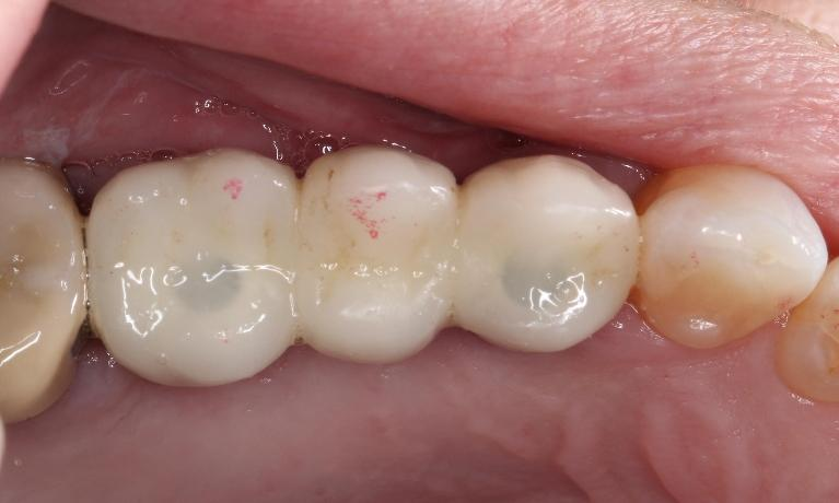 Dental-Implant-Bridge-from-Start-to-Finish-After-Image