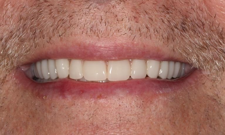 Implant-Retained-Overdenture-After-Image
