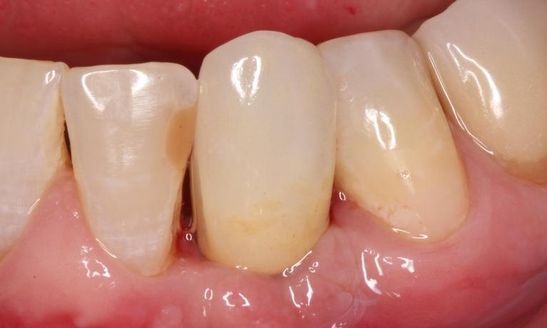 Single-tooth-replacement-with-a-dental-implant-After-Image