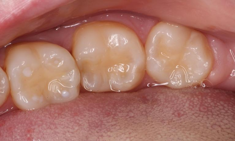White composite filling, tooth colored filling
