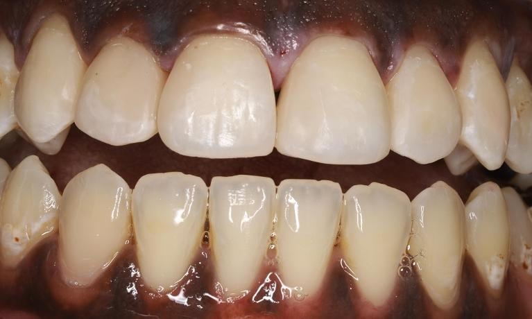 Transforming-a-Smile-with-Tooth-Colored-Fillings-After-Image