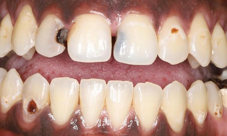 Transforming-a-Smile-with-Tooth-Colored-Fillings-Before-Image